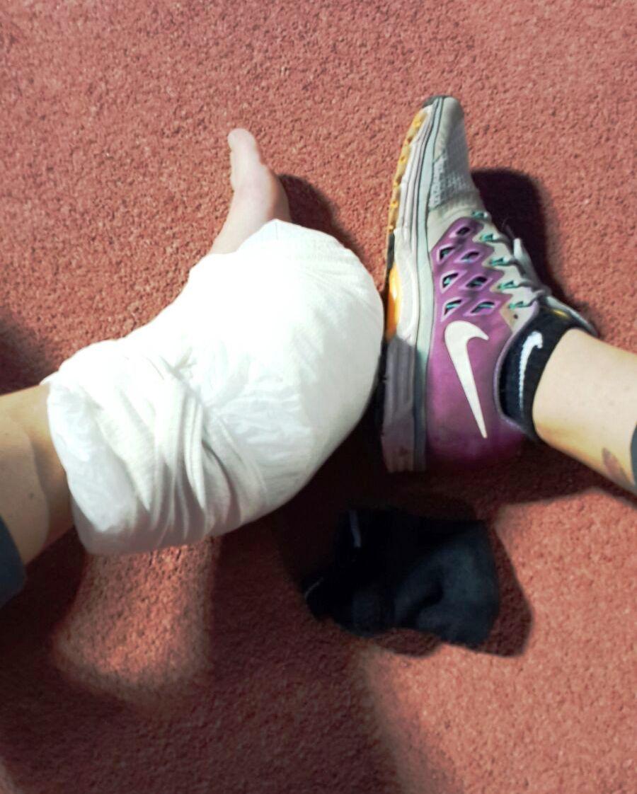הרגל עטופה בקרח אחרי הפציעה